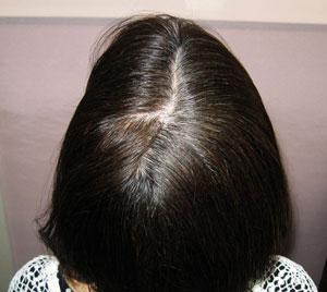 薄毛白髪から黒髪発毛