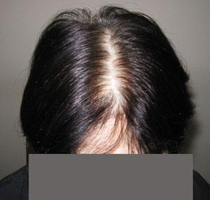 薄毛白髪最初の状態