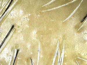 毛染め剤で荒れた頭皮