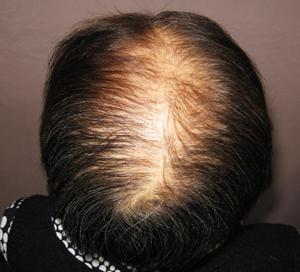 多発型円形脱毛症最初の状態