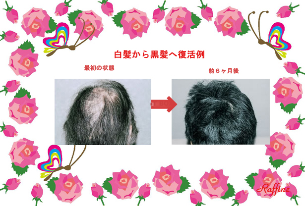 白髪から黒髪発毛再生