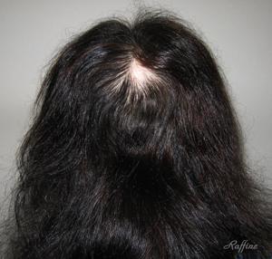 円形脱毛症最初の状態
