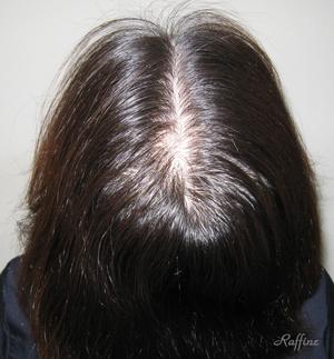 薄毛白髪の改善薄毛前