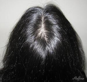 分け目薄毛最初の状態