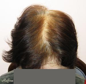 薄毛白髪が治る前の分け目