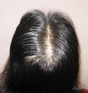 白髪分け目薄毛が治る前の頭頂部
