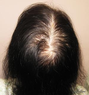 薄毛白髪が治る前の頭頂部