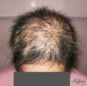 多発型円形脱毛症