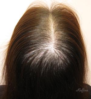 白髪が治る前の分け目