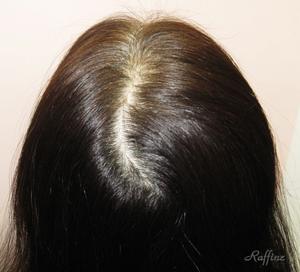 分け目の白髪薄毛