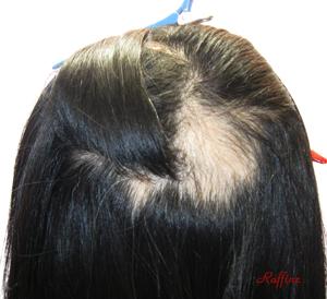 円形脱毛症の最初の状態