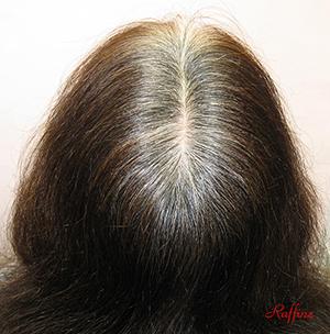 白髪が治る