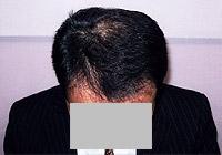 男性の薄毛から発毛