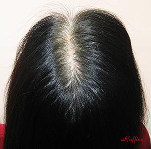 白髪から黒髪復活再生