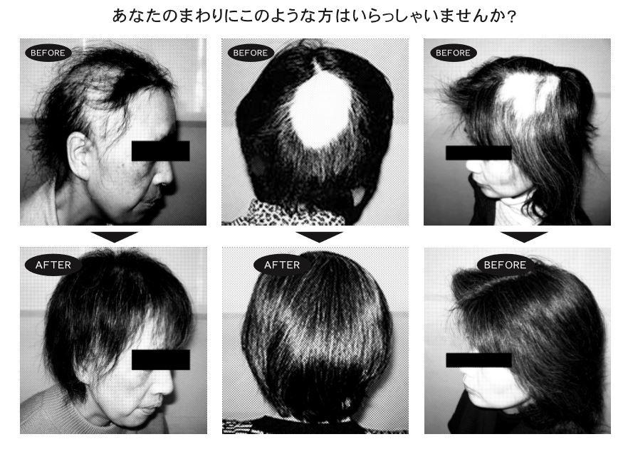 薄毛円形脱毛症や白髪に悩む女性の効果画像