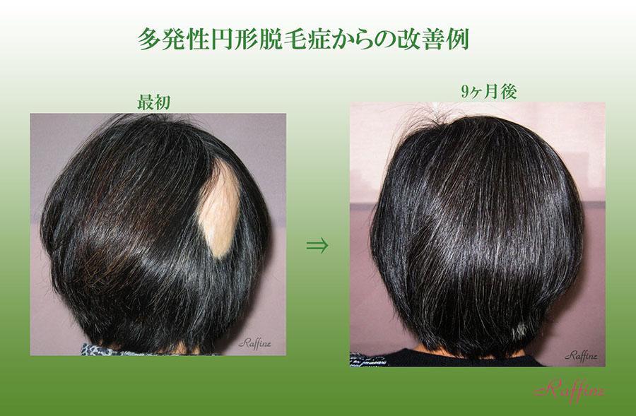 多発性円形脱毛症