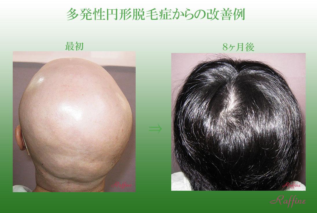 多発性円形脱毛症9