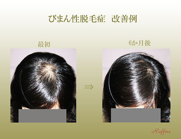 びまん性脱毛症改善例