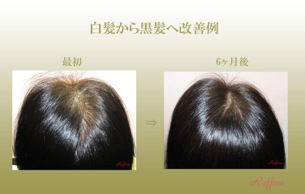 白髪から黒髪改善再生