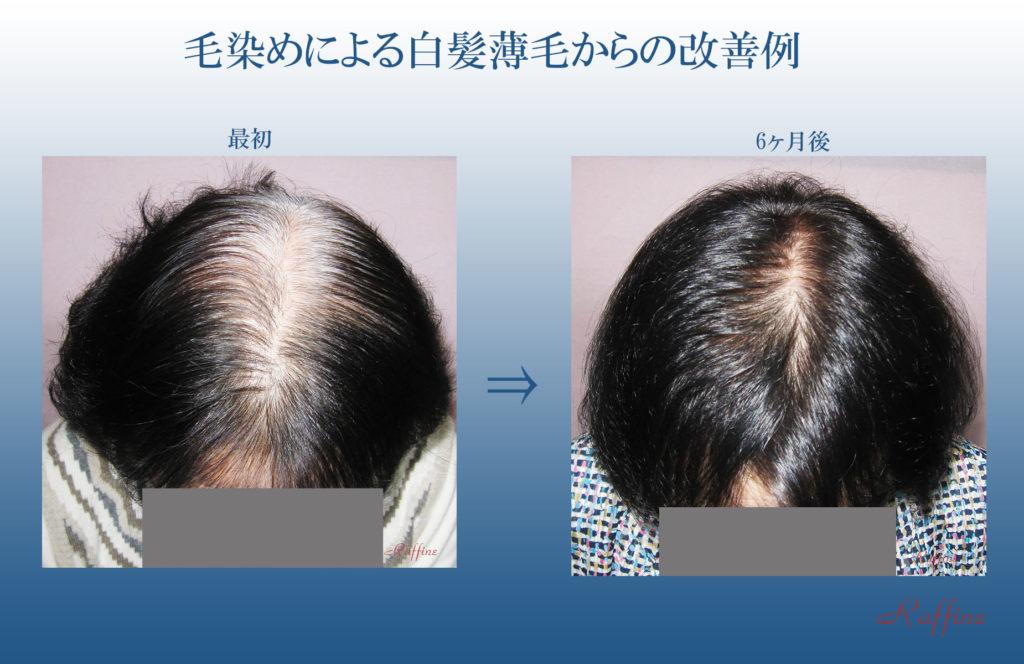 毛染めによる白髪薄毛からの改善例