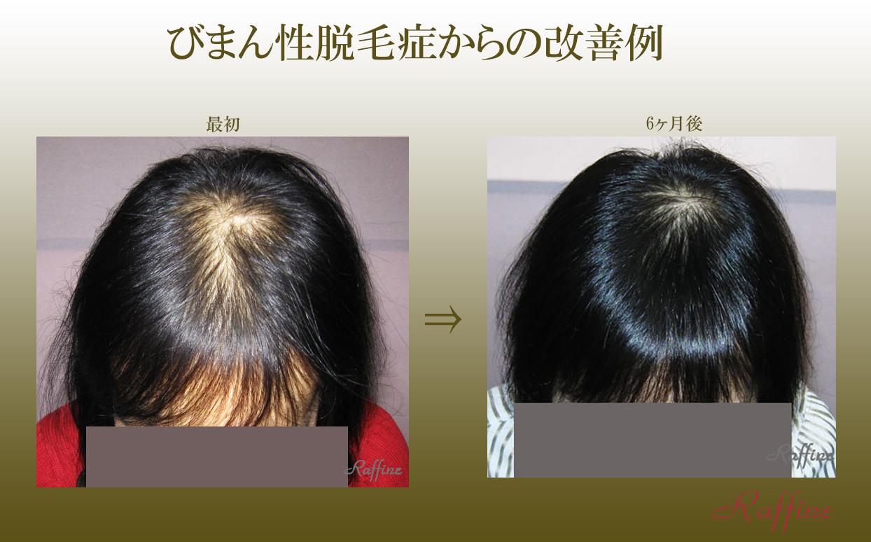 びまん性脱毛症からの改善