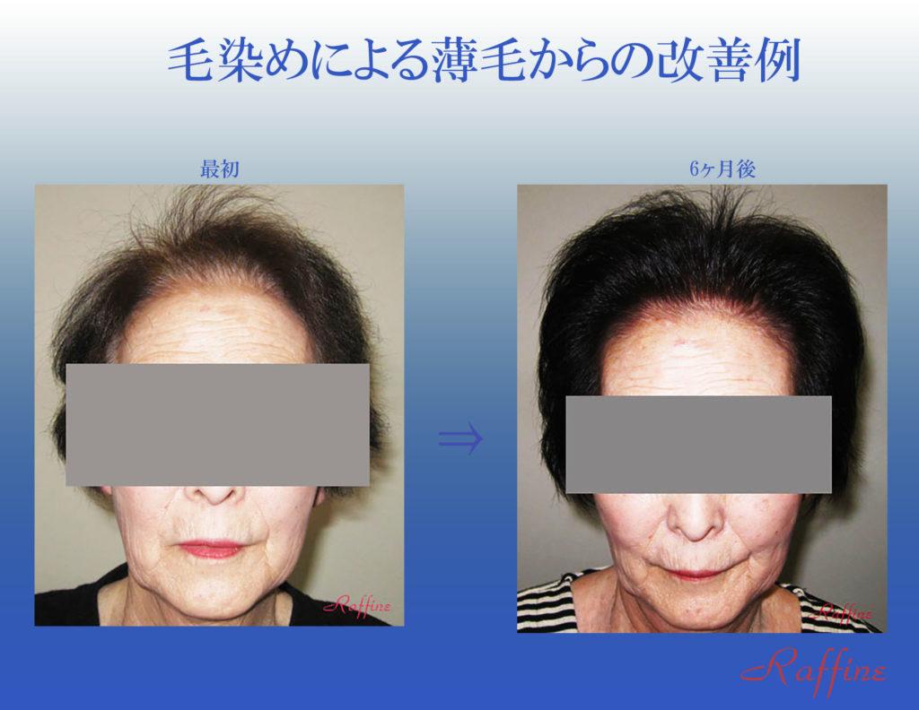 毛染めによる薄毛からの改善例1