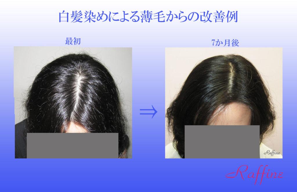 白髪染めによる薄毛からの改善