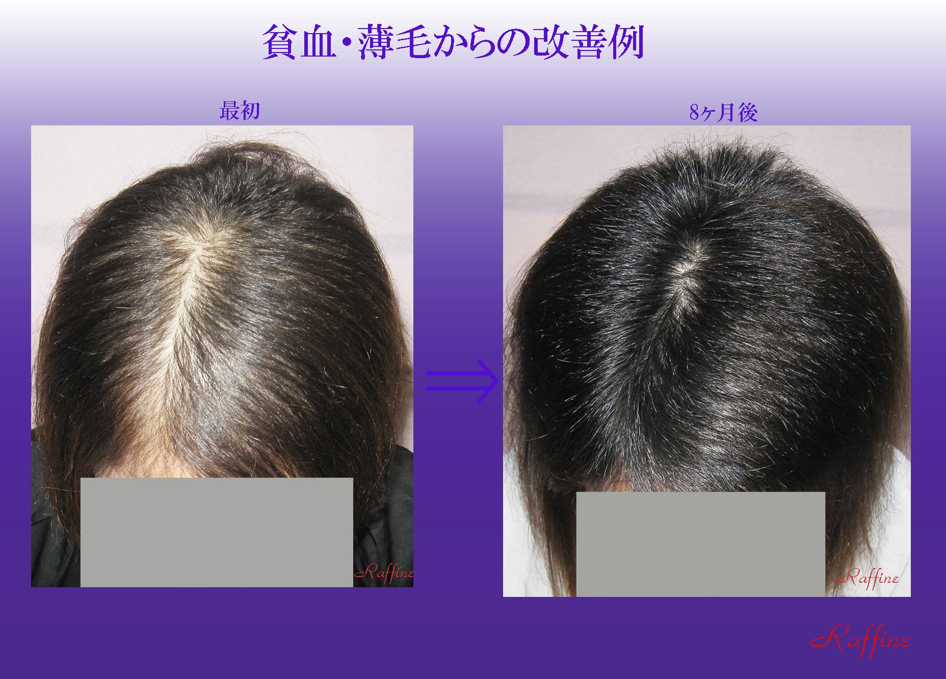 貧血・薄毛からの改善