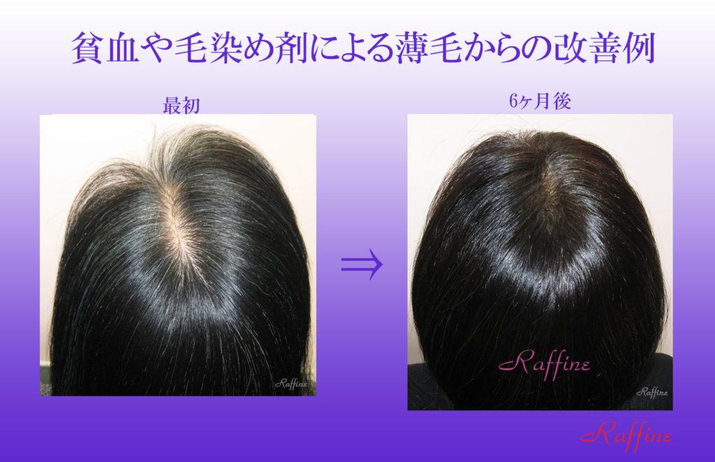貧血や毛染め剤による薄毛からの改善ビフォーアフター例1