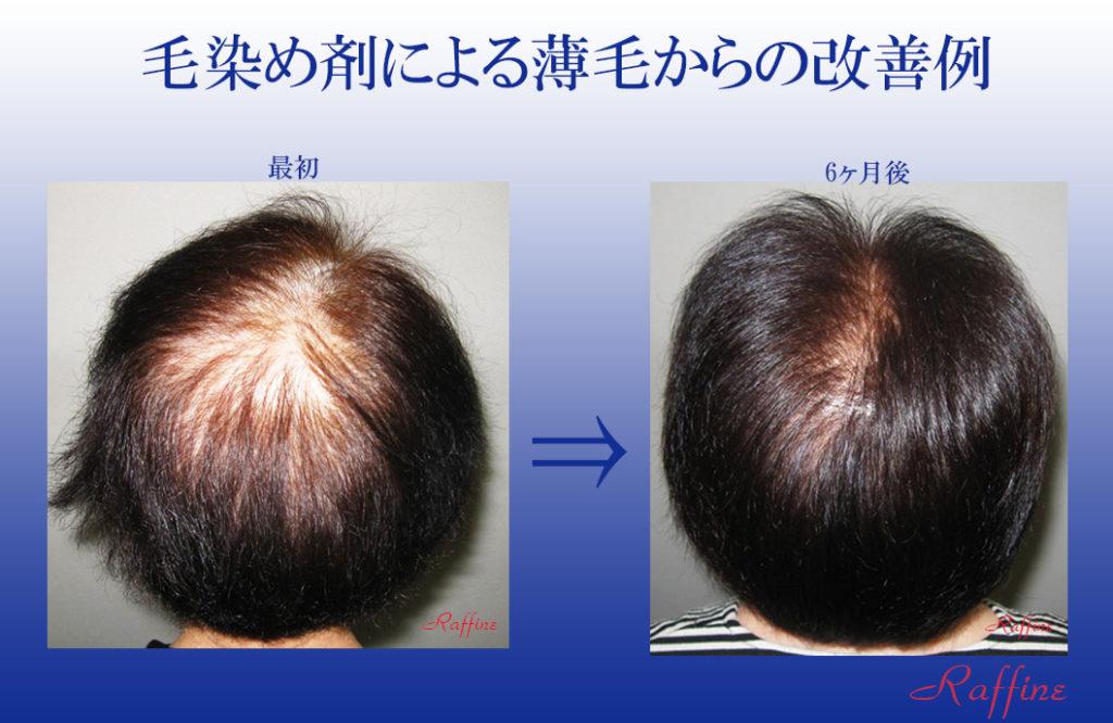毛染め剤による薄毛からの改善例