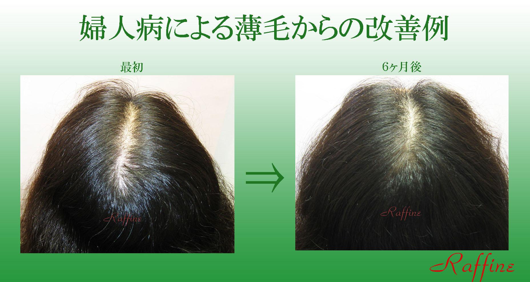 婦人病による薄毛からの改善例