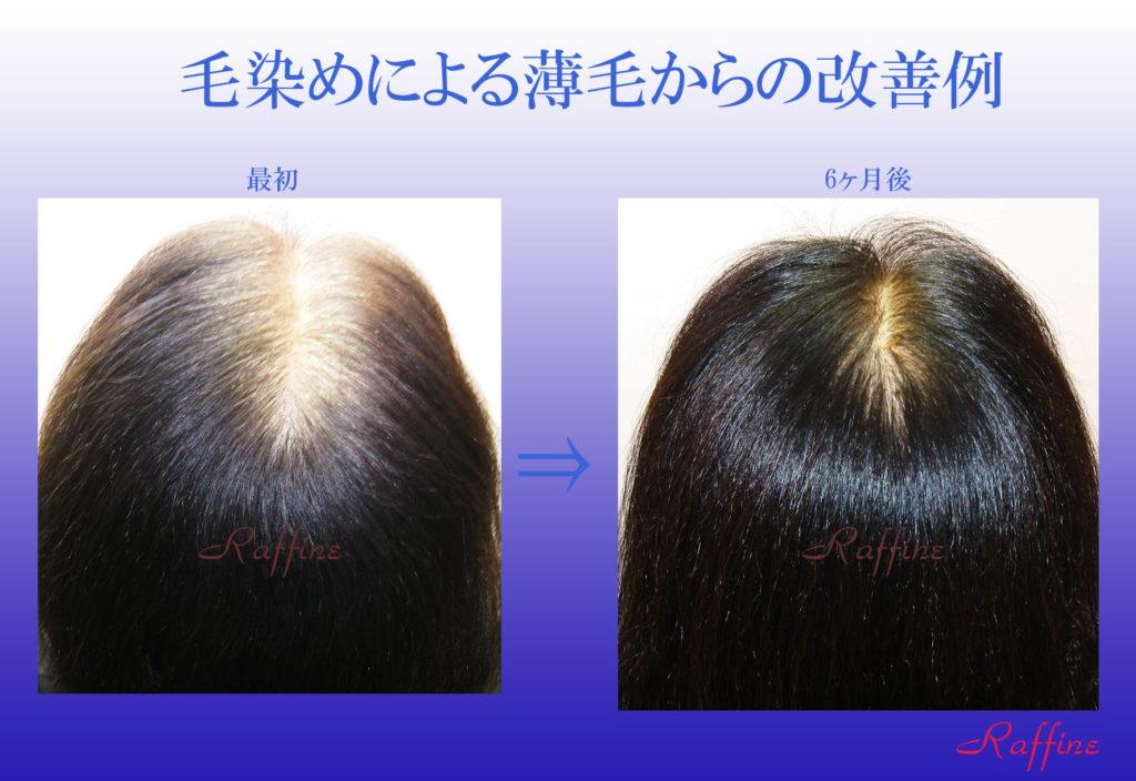 毛染めによる薄毛からの改善例2