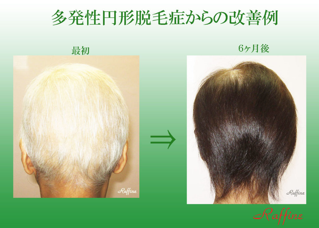 多発性円形脱毛症からの改善例