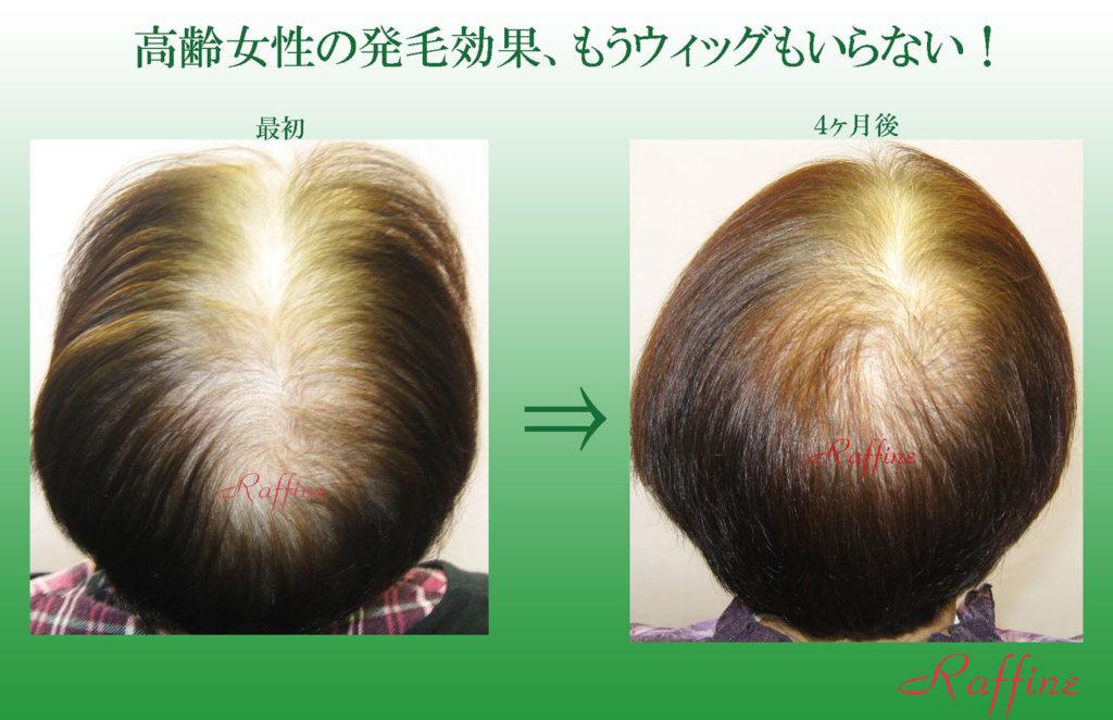 高齢女性の発毛効果、