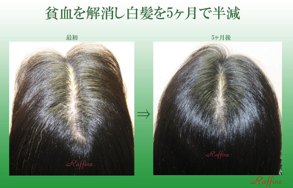 貧血を解消し5ヶ月で白髪半減効果