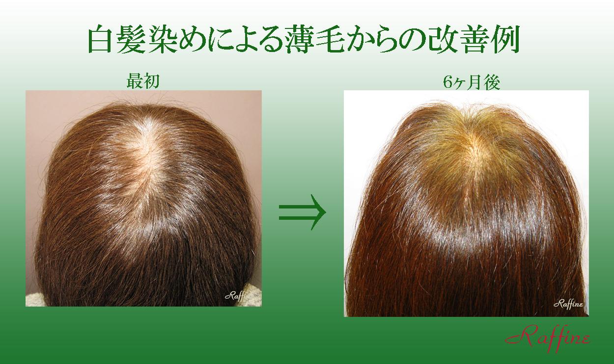 白髪染めによる薄毛からの改善例