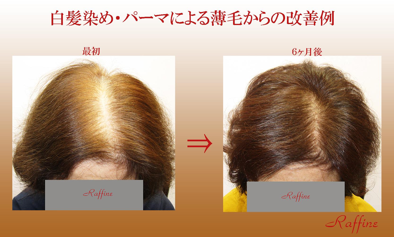 白髪染め・パーマによる薄毛からの改善例3
