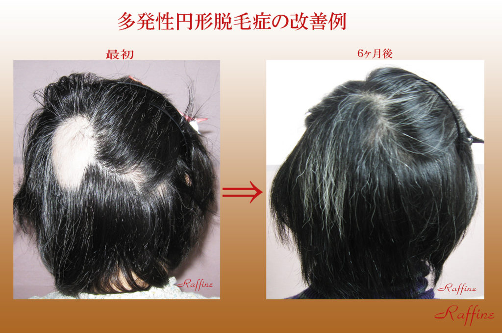 多発性円形脱毛症の改善例