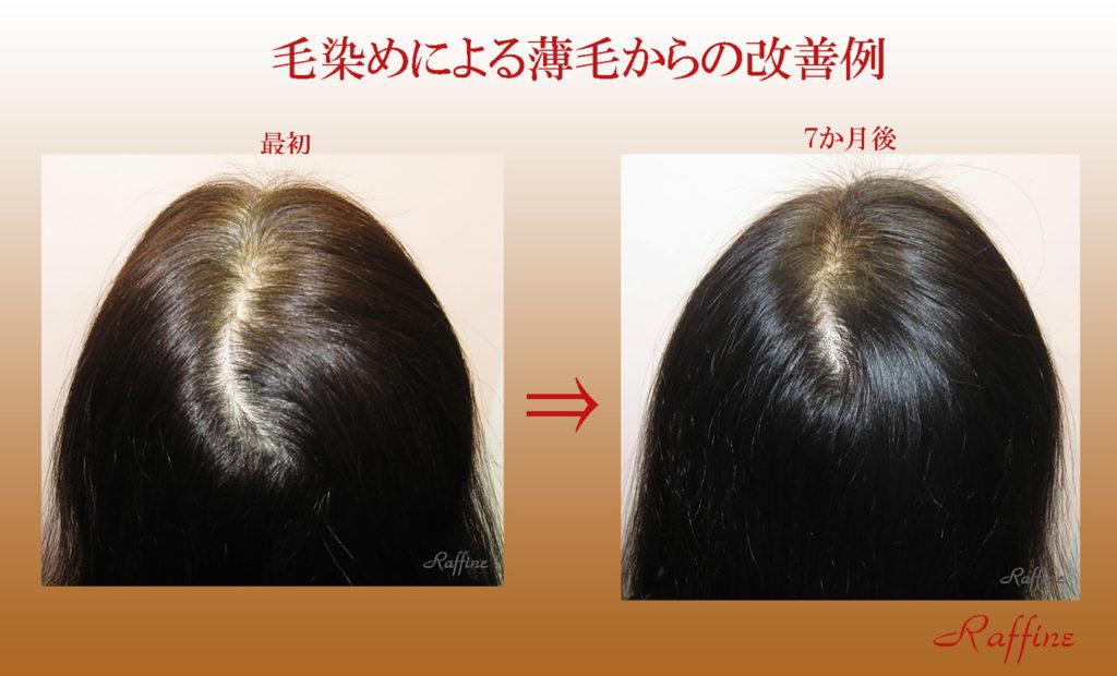 毛染めによる薄毛からの改善例
