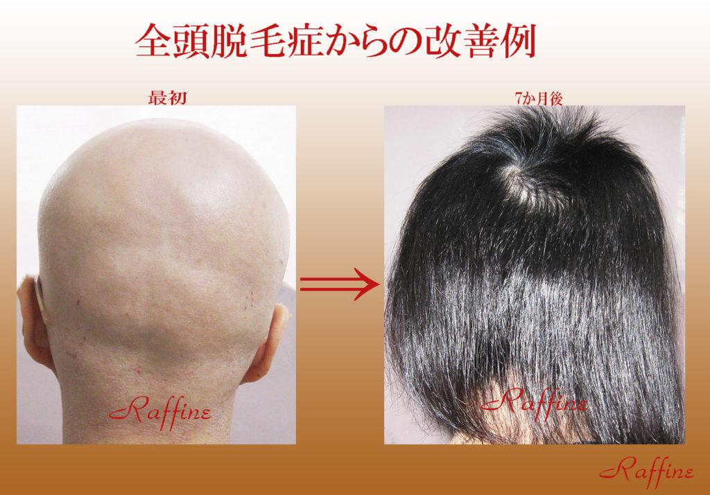 全頭脱毛症からの改善例