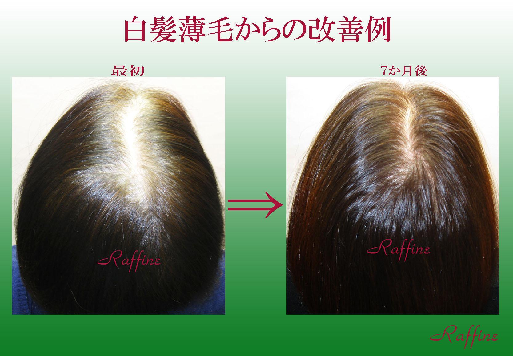 白髪薄毛からの改善例