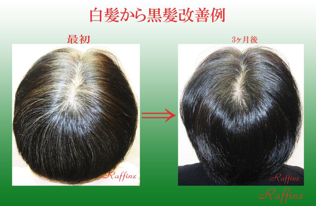 白髪から黒髪に改善
