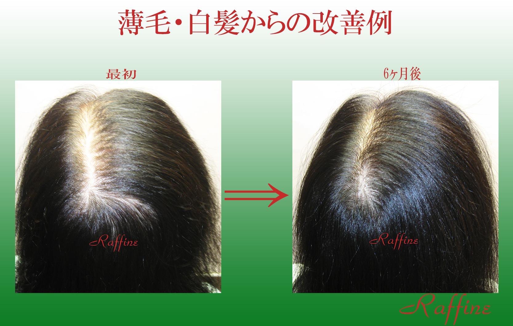 薄毛白髪からの改善例