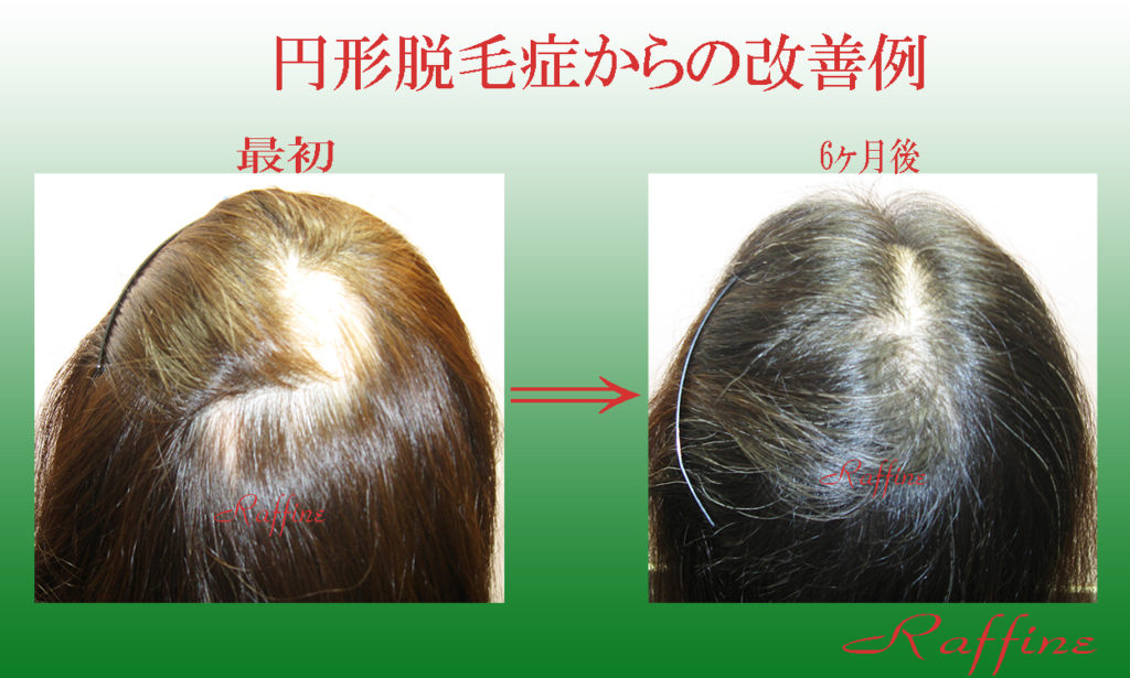 円形脱毛症の改善例