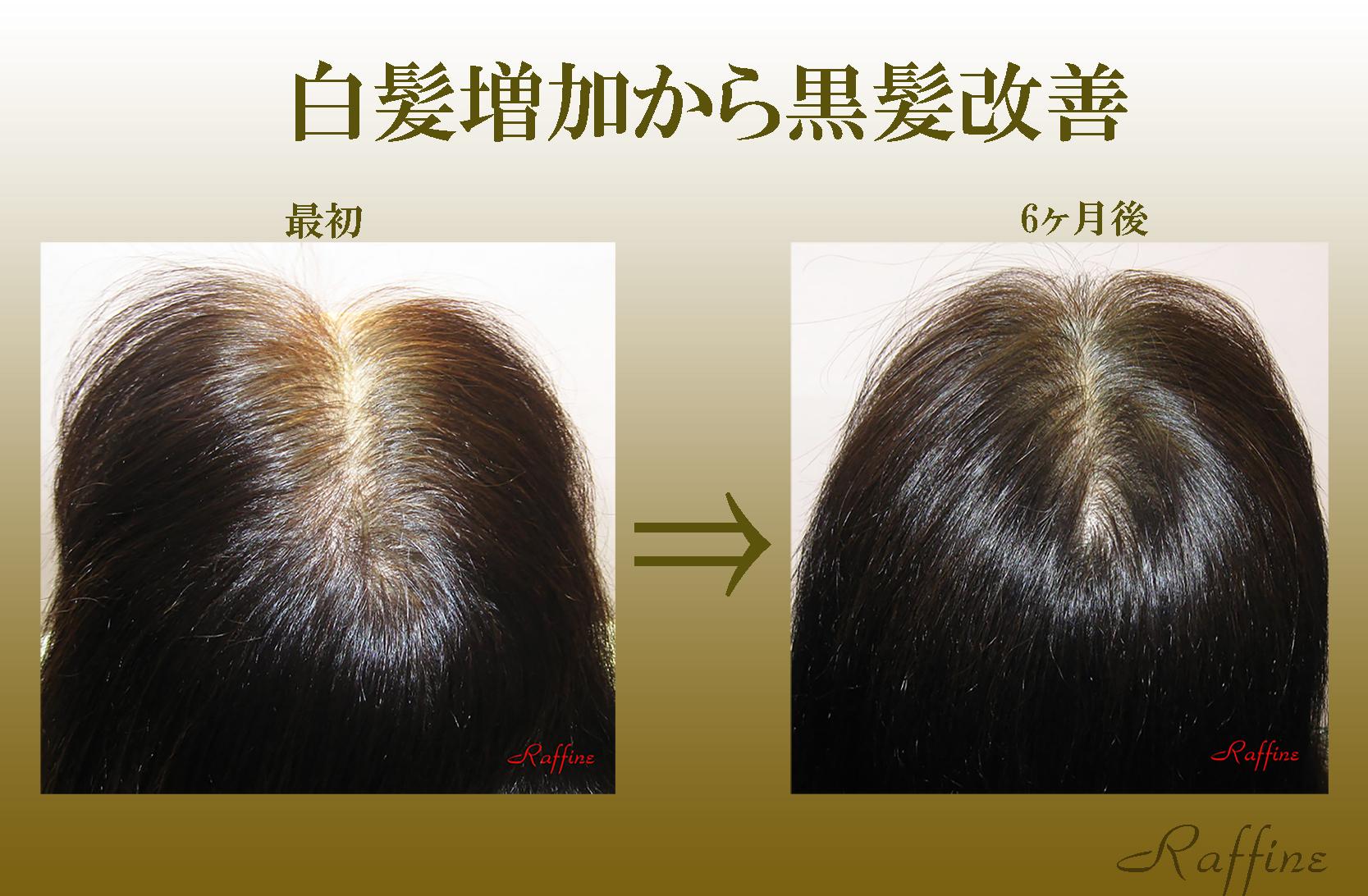 白髪増加から黒髪改善