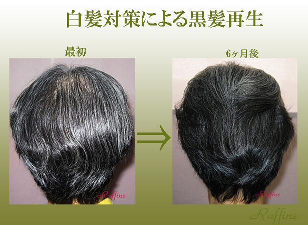 薄毛白髪から黒髪再生発毛