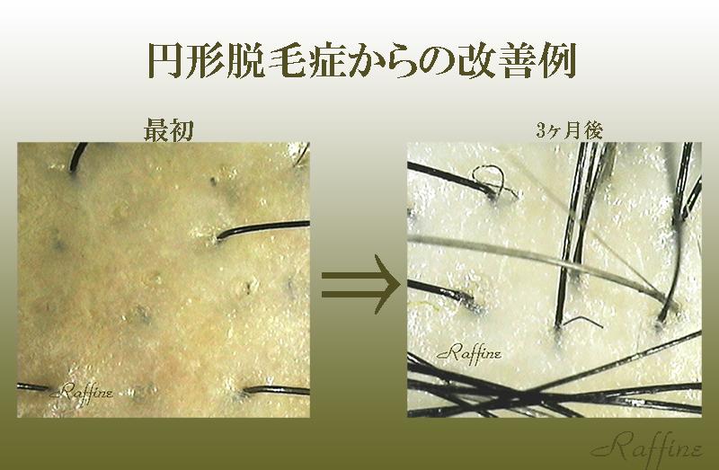 円形脱毛症からの頭皮改善例
