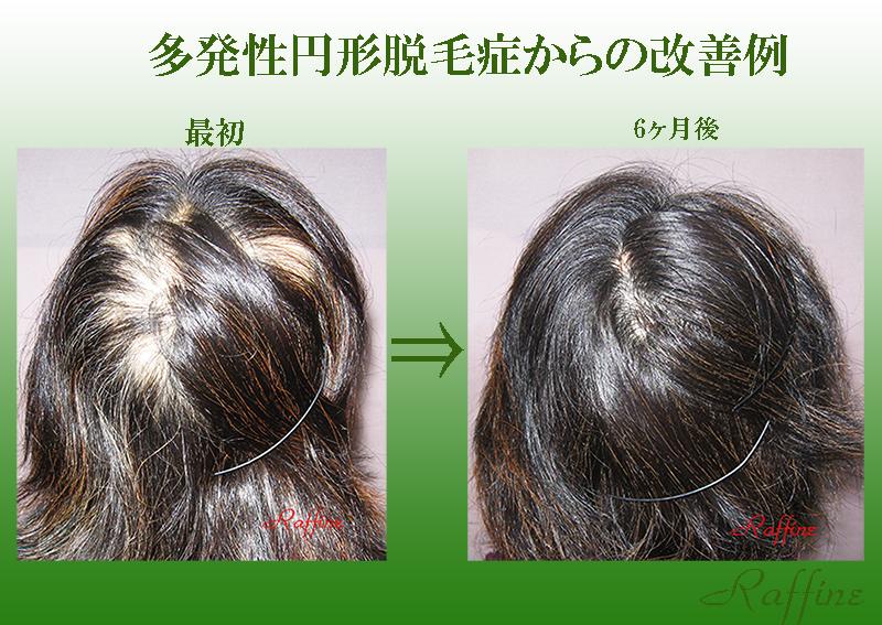 円形脱毛症からの改善