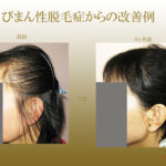 びまん性脱毛症 改善例